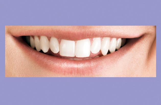 Zahnersatzsparen: Wirkungsvoll und Effektiv